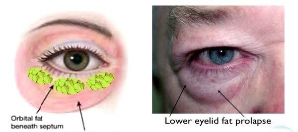 Blepharoplasty- Eyelid Surgery Long Beach | Eye Surgeon Long Beach